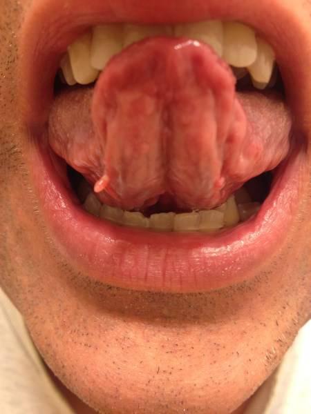skin tag on tongue