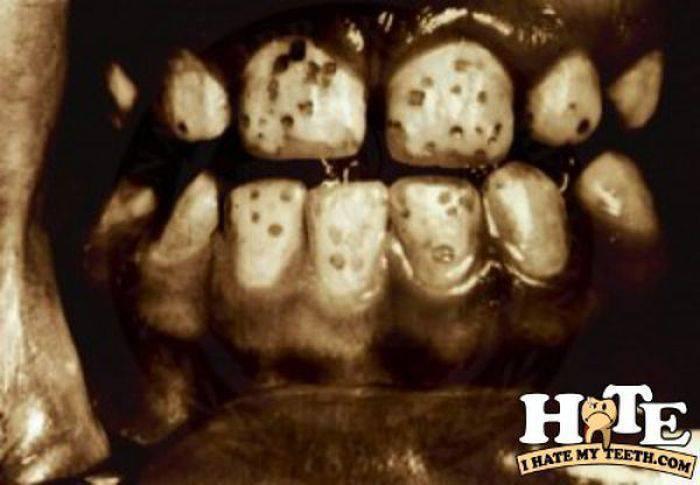 Ząbki, czyli problemy z uzębieniem 15