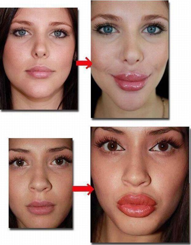 Как сделать так чтобы губы рассосались 679