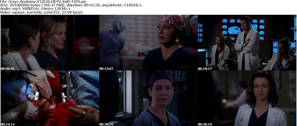 Clube Download Greys Anatomy Season 11 Torrent