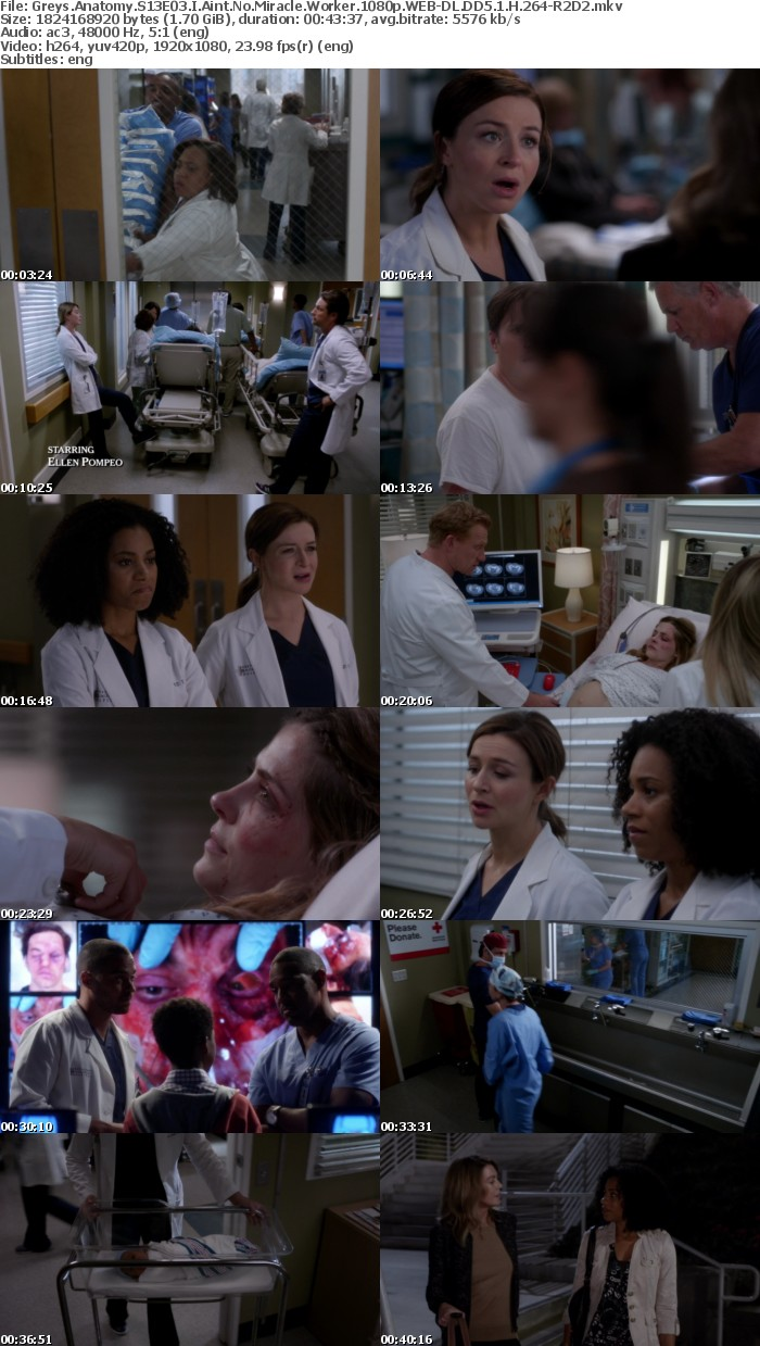 Greys Anatomy S13E03 I Aint No Miracle Worker 1080p WEB DL DD5 1 H 264 R2D2