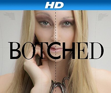 Botched S05E11 Magical Mystery Breasts 720p HDTV x264-CRiMSON